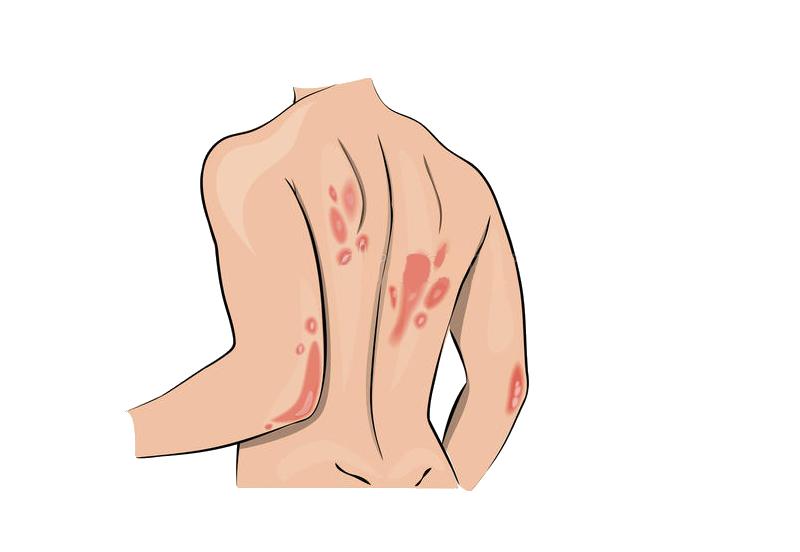 Favpng symptom systemic lupus erythematosus allergy psoriasis skin